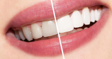 6 Ways To Get Whiter Teeth At Home