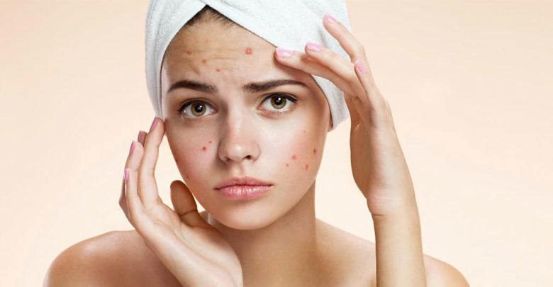 how to treat pimples