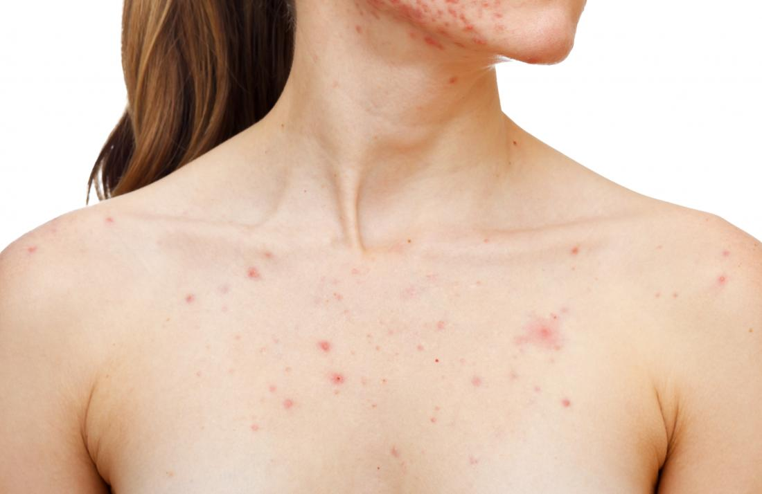 how to treat pimples-