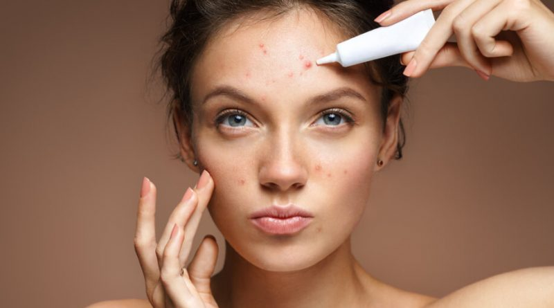 How The Acne Scars Are Treated